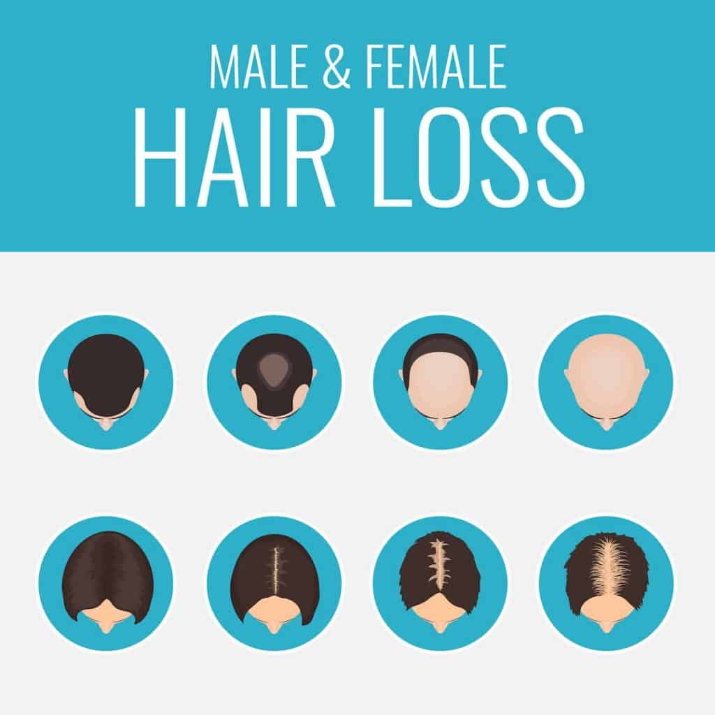 Male and female hair loss set showing women and men hair loss areas over time - hair loss on keto diet